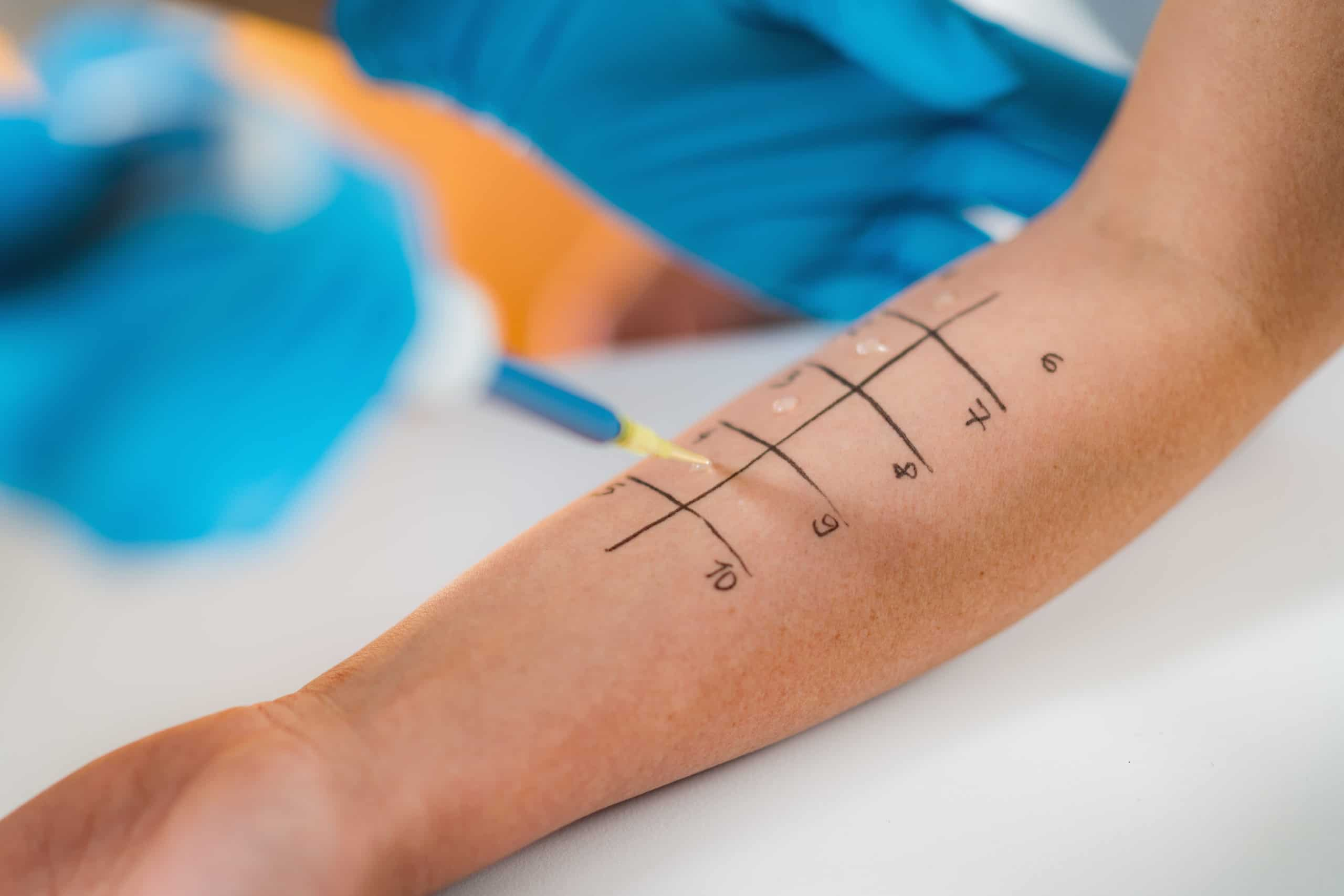 Allergy Test- Skin Prick Allergy Testing for Possible Allergens